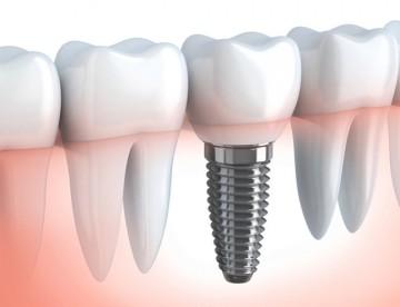 Implantologia Dentale Osteointegrata
